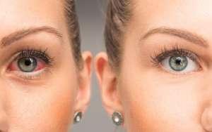 Droge ogen en hormonen
